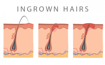 How long do ingrown hairs last
